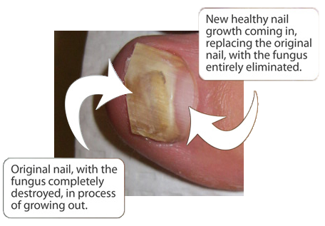 What exactly is toenail fungus and if i have it what do i do about it