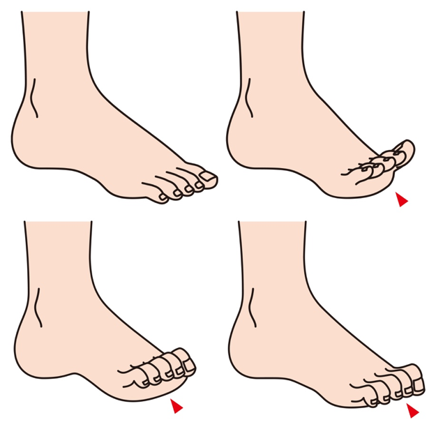 hammer toe treatment services in Chicago IL