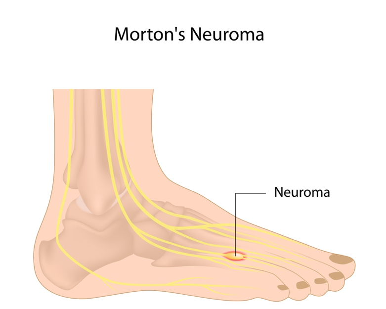 Mortons Neuroma Treatment Services