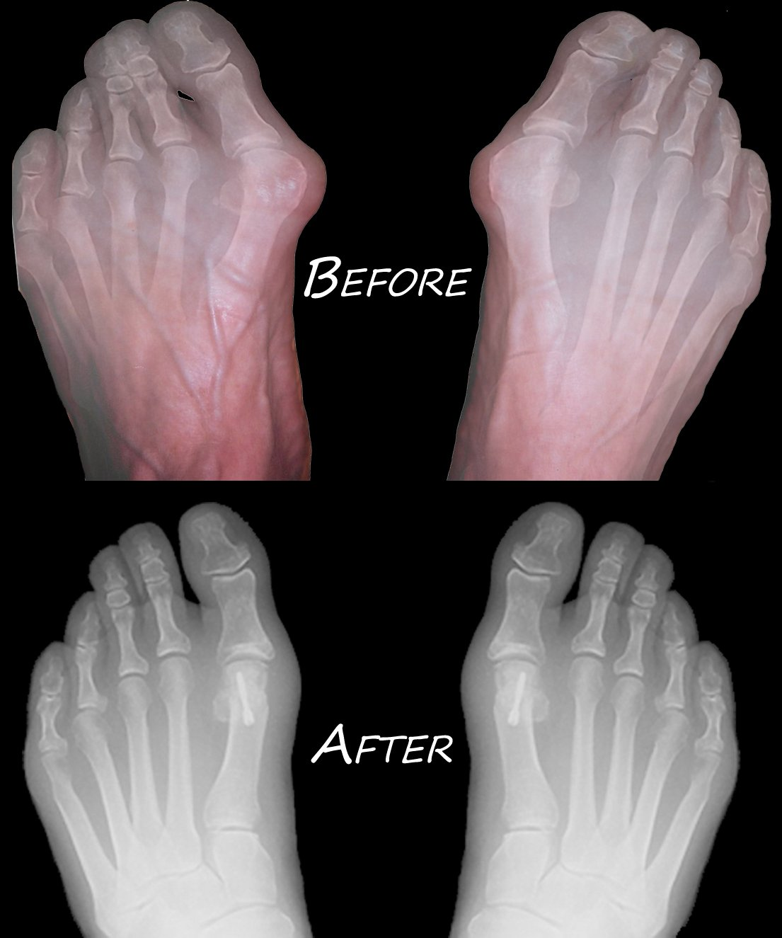 Bunions - Before/After
