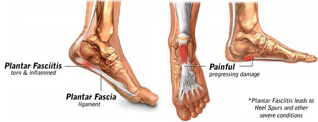 Plantar Fasciitis Treatment in Chicago
