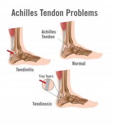 Achilles Tendon Specialist in Wheeling & Lincolnwood IL