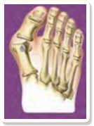 bunions treatments in chicago (Wheeling & Lincolnwood) Illinois