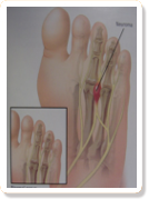 foot & ankle neuroma treatments in Wheeling IL & Lincolnwood