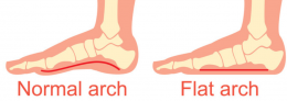 Flat Arch Feet Vs Normal Arch