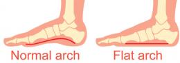 Flat Arch Feet Vs Normal Arch