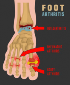 foot arthritis treatment clinic chicago
