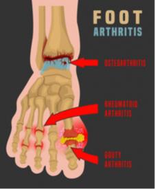 foot arthritis treatment clinic chicago