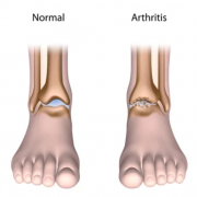 Foot & Ankle Arthritis Treatment in Wheeling & Lincolnwood IL