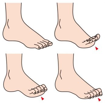 treat hammer toes in North Chicago & Wheeling IL