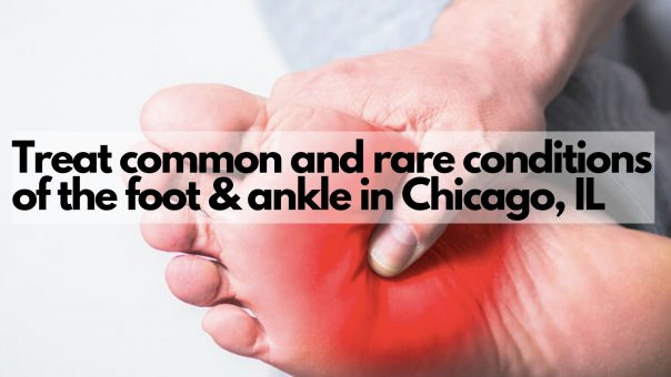 Treat common and rare conditions of the foot & ankle in Chicago, IL