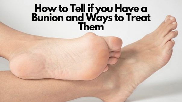 Warning Signs of Bunion & Treatment in Chicago & Wheeling IL